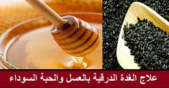 علاج الغدة الدرقية بالعسل والحبة السوداء